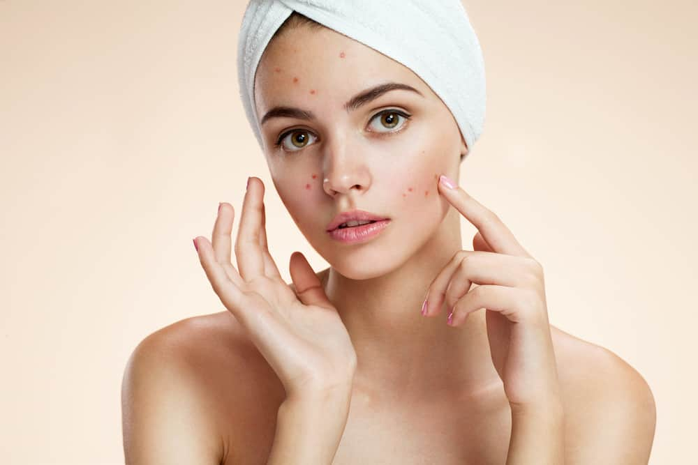 Scowling girl pointing at her acne with a towel on her head.